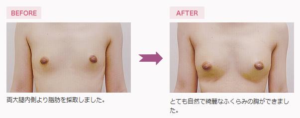 脂肪注入豊胸手術